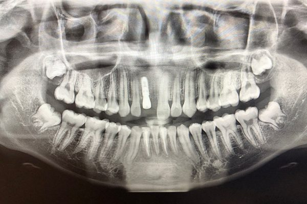 xray view of teeth